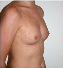 Pre Breast Augmentation