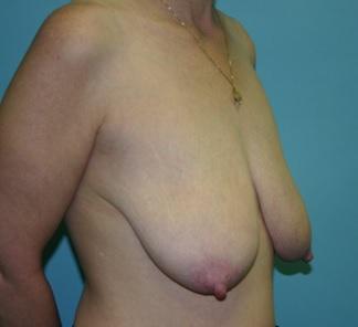 Pre Breast Lift