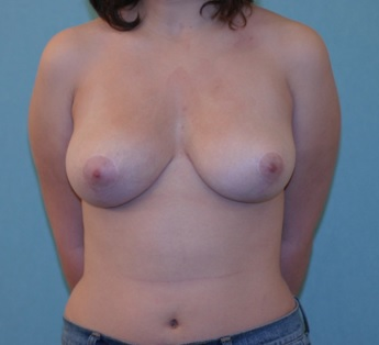 After Breast Reduction Surgery