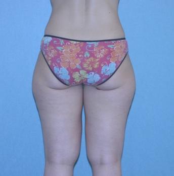 Pre Liposuction Melbourne
