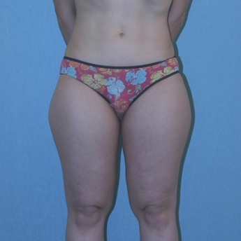 Before Liposuction Surgery