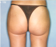 Post Liposuction Surgery