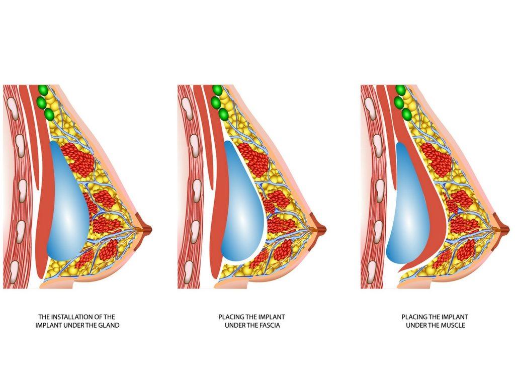 Breast Augmentation Melbourne Plastic Surgery