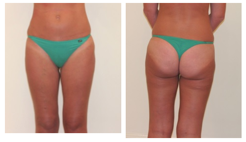 MPS Liposuction