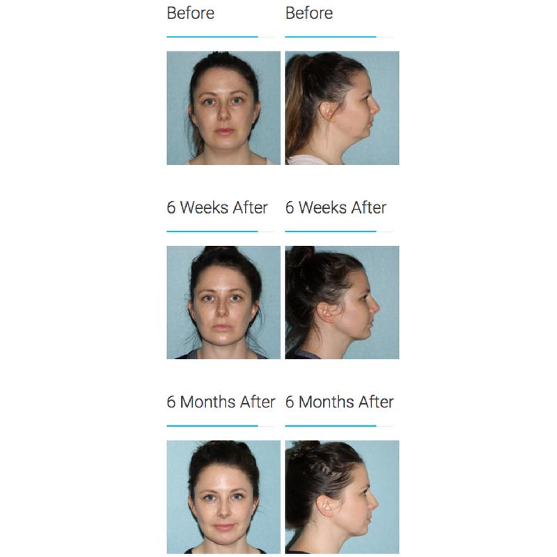 Surgical Liposuction